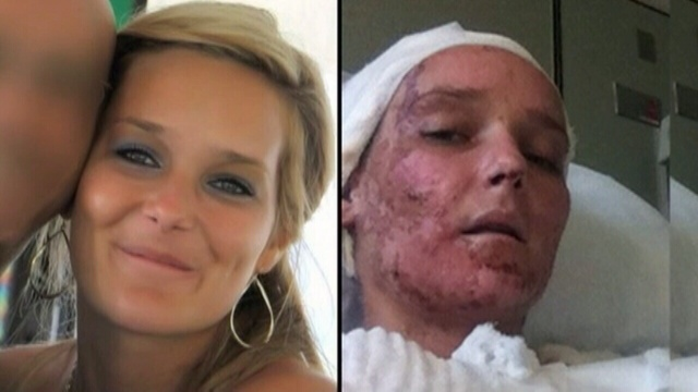 Acid-attack-side-by-side.jpg_25900538