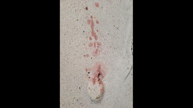 Blood on beach