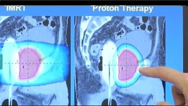 Proton therapy films