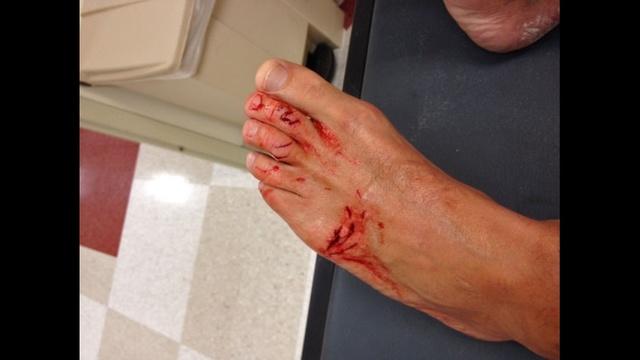 Birchall shark bite