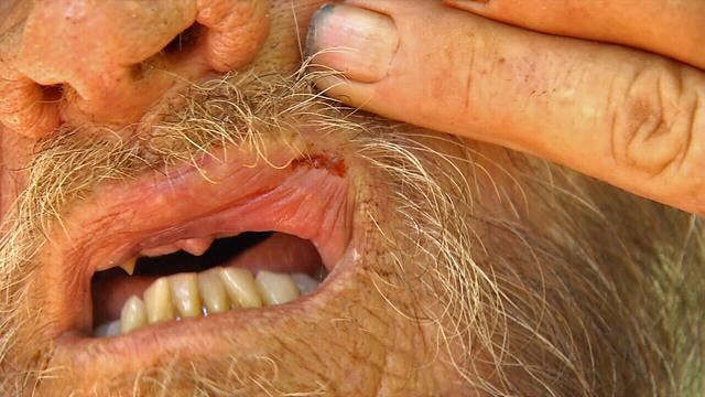 Beaten vet split lip