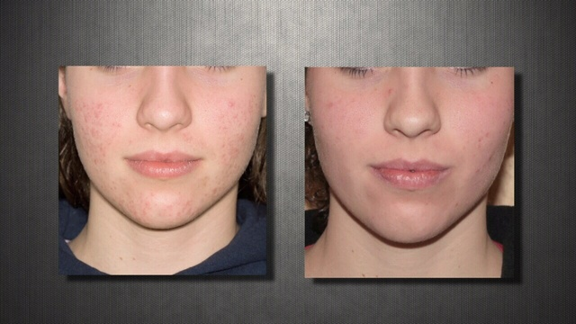 Acne-before-and-after.jpg_24396486