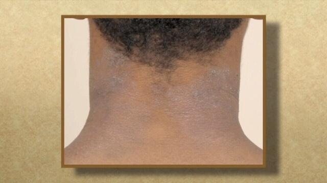 Eczema-up-close-pix.jpg_25285628