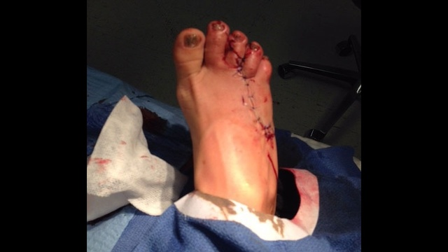 Stitches on foot for shark bite