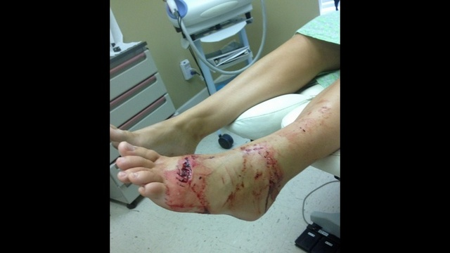 Shark bite foot
