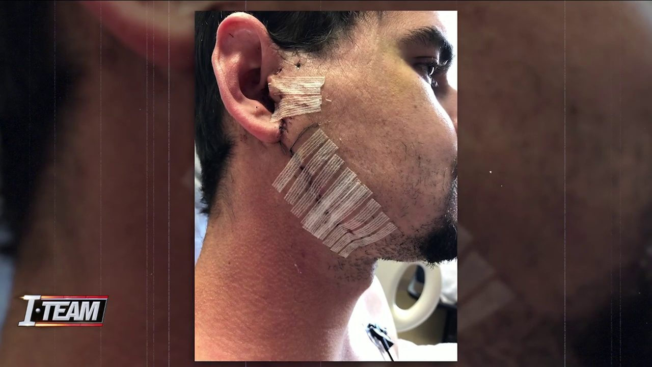 Attorney: JSO is flouting public records law in jail beating