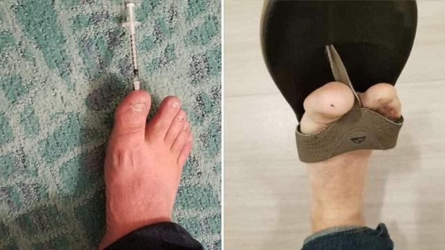 Veteran claims he stepped on syringe at Jacksonville Beach hotel
